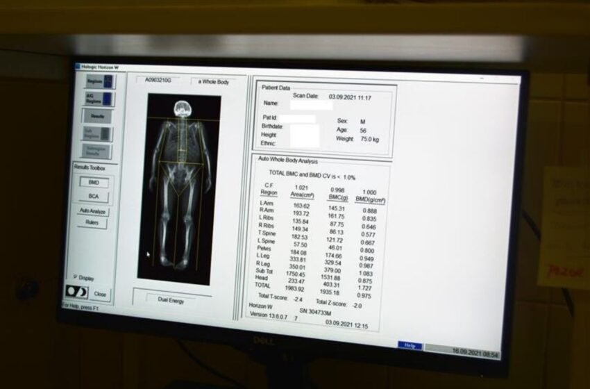 Tisíce pacientů ročně využijí v mladoboleslavské nemocnici nový denzitometr